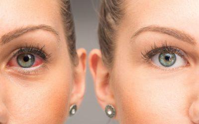 Nużeniec – przyczyna dokuczliwej choroby oczu i skóry